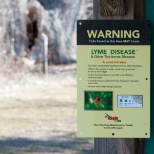 Lyme Disease Symptoms & Treatment
